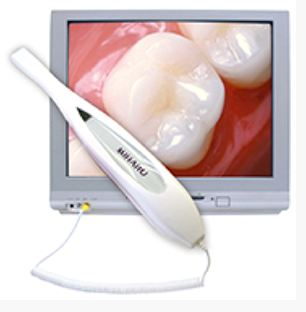 Intraroal camera with an image of a patient's teeth at Portland City Dental in Portland, OR.